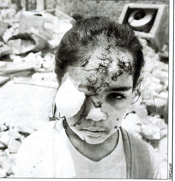 car_bomb_child_survivor.jpg