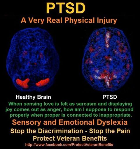 stop_ptsd_discrimination.jpg